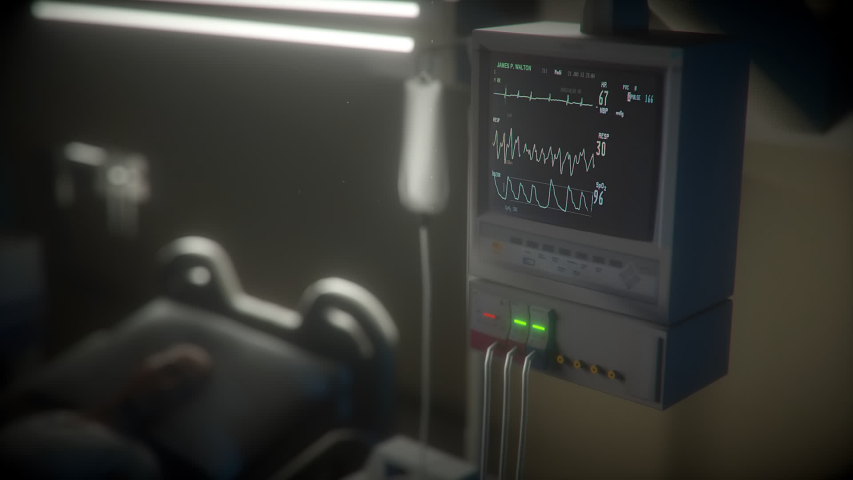 3d hospital room patient's condition on the monitor in operating room. Heart beat and blood pressure on the screen.