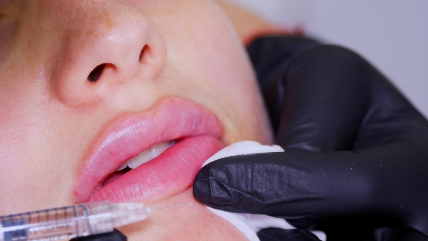 close-up, female face. Surgeon, in medical gloves, pierces womans lip with a syringe and slowly injects hyaluronic acid. lip augmentation procedure. beauty injections. Plastic surgery. Royalty-Free Stock Footage #1058042071