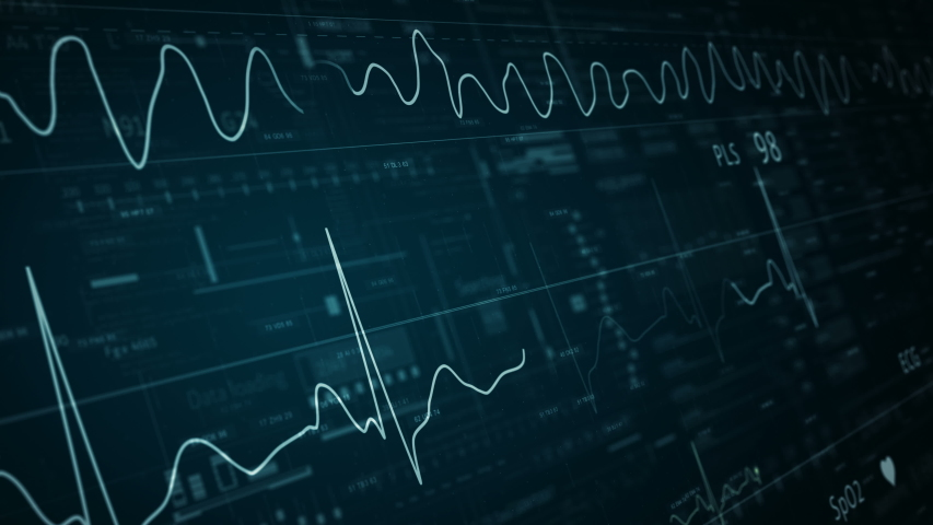 ECG abstract HUD.Heart beat line template.Cardiogram monitor.Technological HUD for medicine and science,Medical Institute students.Vfib.   Shutterstock HD Video #1058076757