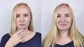 Second chin lift in women. Video before and after plastic surgery, mentoplasty or facebuilding. Chin fat removal and face contour correction