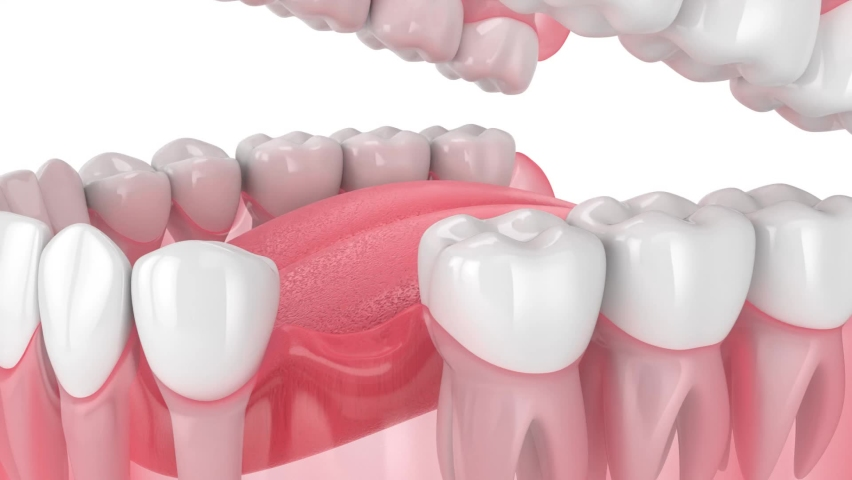 Teeth sliding towards the area of missing tooth. Consequences of tooth loss.   Royalty-Free Stock Footage #1058527273