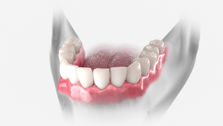 3D animation of dental restoration with dental bridge, supported by two implants.