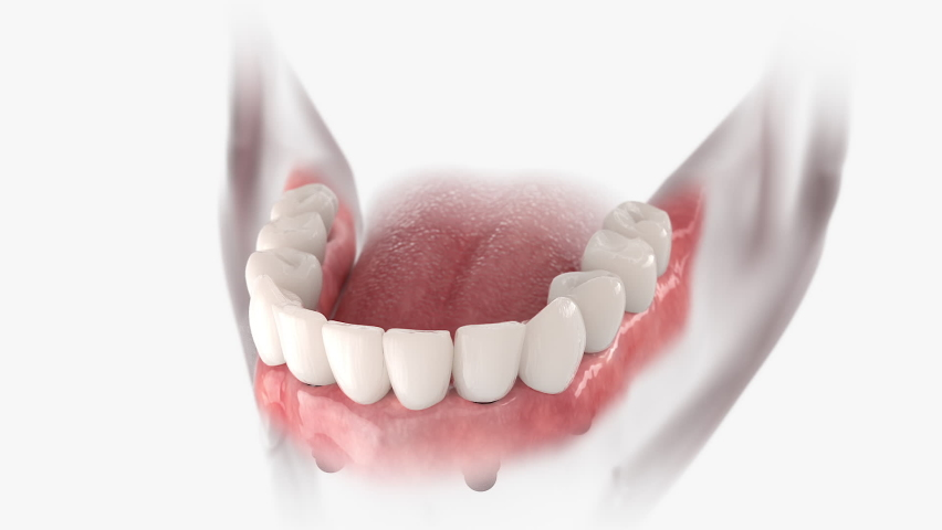 Restoration of mandible with 6 implants. 3D animation of installation dental prosthesis.