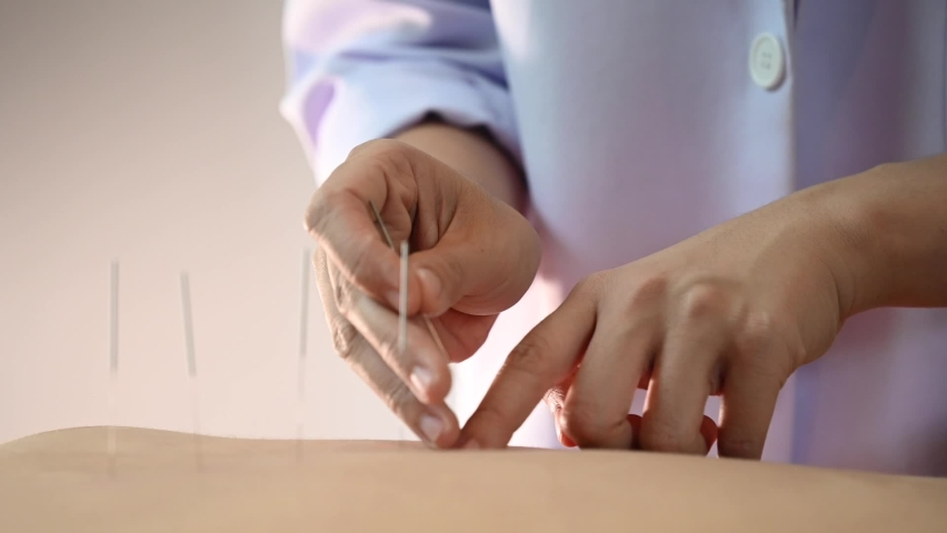 Acupuncture.Close-up Of A Person Getting An Acupuncture Treatment