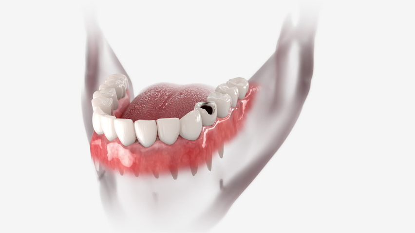 Restoration process of a decayed tooth by means of a dental crown.  Royalty-Free Stock Footage #1058949440