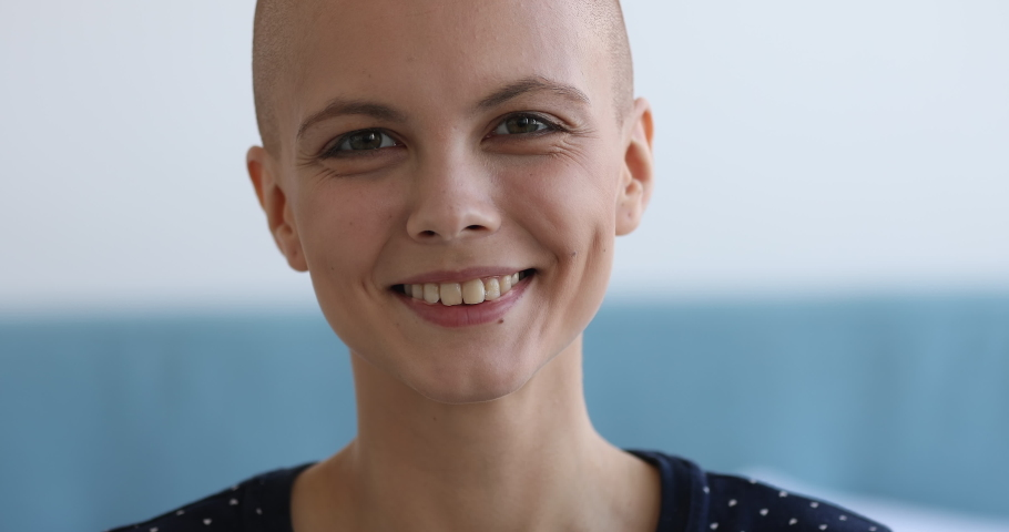 Cancer Survivors Day concept. Close up view face portrait of bald caucasian attractive woman looking at camera having charming wide smile, girl recovered from oncology disease feels happy pose indoors