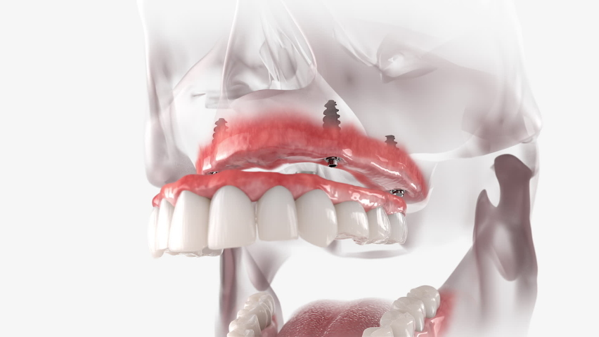 Full arch dental prosthesis of the upper jaw.