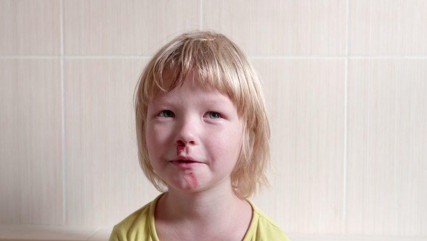 Little fair-haired boy is smeared with blood. baby has weak vessels in nose bursting with pressure drops and changes in weather. Hemophilia disease | Shutterstock HD Video #1059588134
