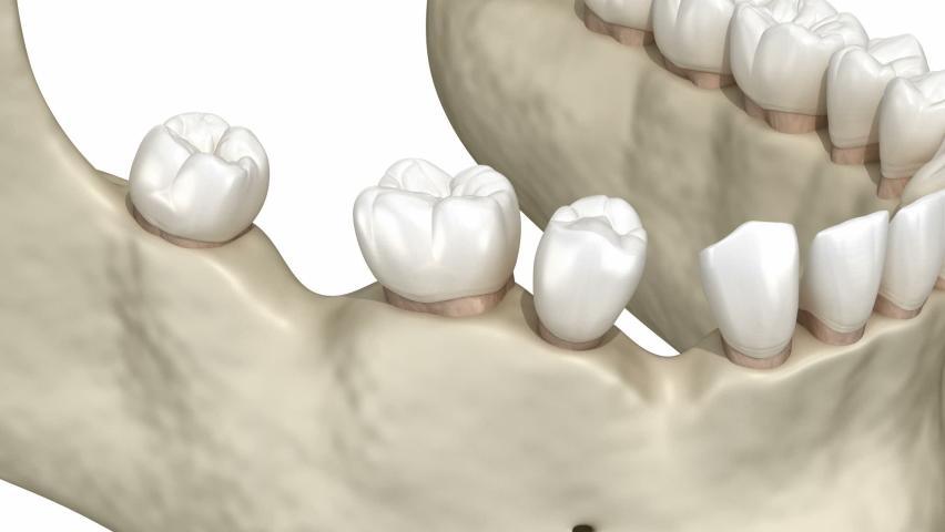 Teeth shift deformatiuon after losing teeth. 3D animation of Popov Godon phenomenon   Shutterstock HD Video #1060189109