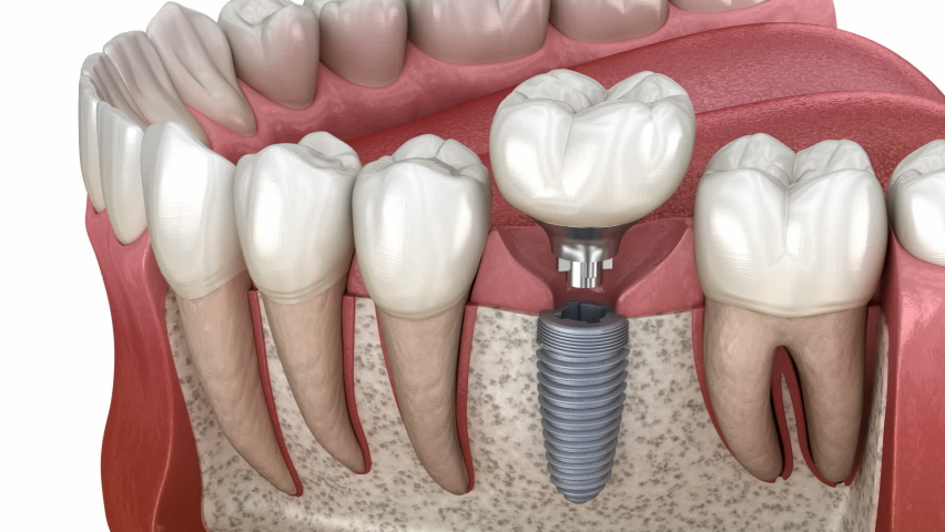 Dental implant instalation, custom abutment and ceramic crown. Medically accurate tooth 3D animation