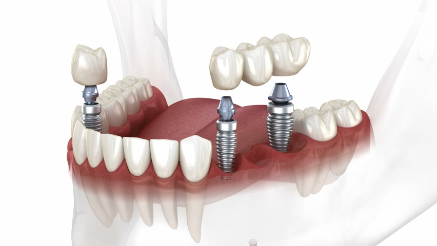 Dental bridge and crown placement over implants. Dental 3D animation concept   Shutterstock HD Video #1060484464