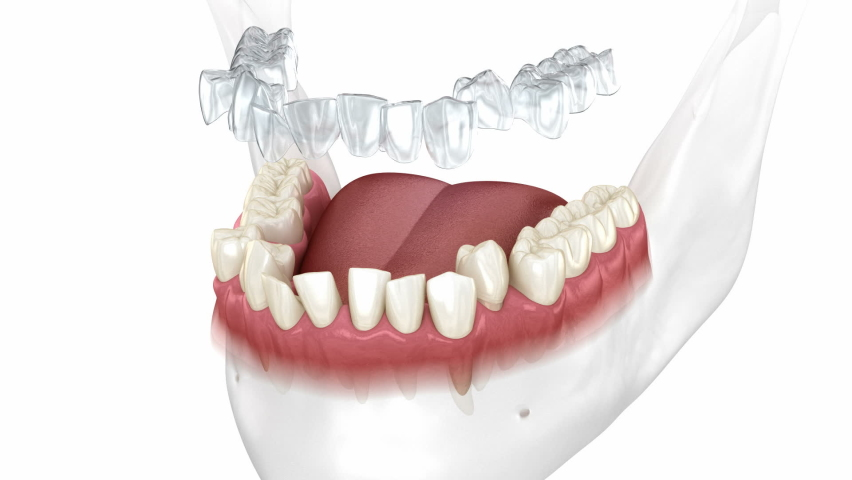 Invisalign braces or invisible retainer make bite correction. Medically accurate 3D animation Royalty-Free Stock Footage #1060484467