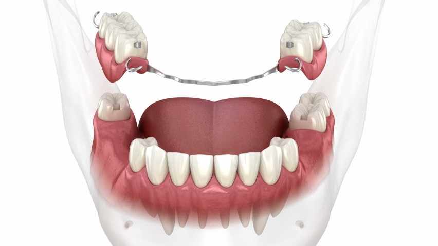 Removable partial denture, mandibular prosthesis. Medically accurate 3D animation of prosthodontics concept