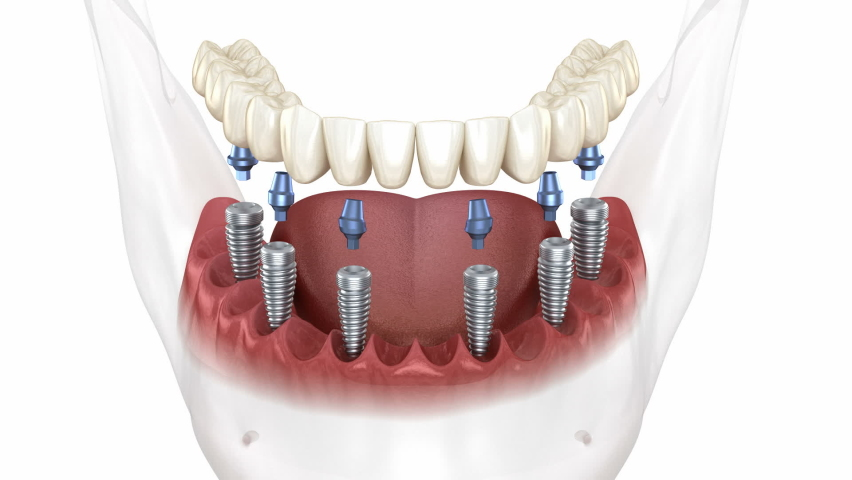 Removable mandibular prosthesis all on 6 system supported by implants. Medically accurate 3D animation of human teeth and dentures