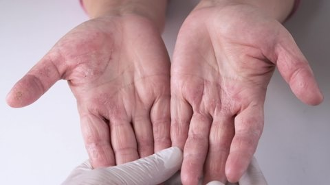 Doctor Examining Patient With Dermatitis Red-raw, dry and sore  skin On on the hands palms and fingers, Close up