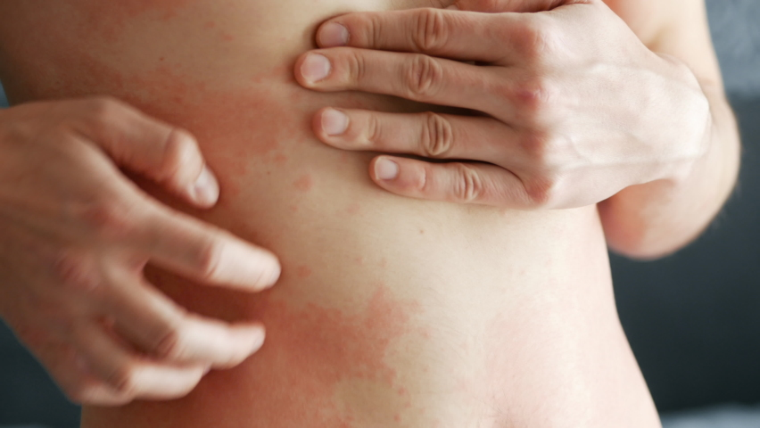 Close-up man scratches a red rash on his stomach in close-up. Allergies and skin diseases | Shutterstock HD Video #1062158125
