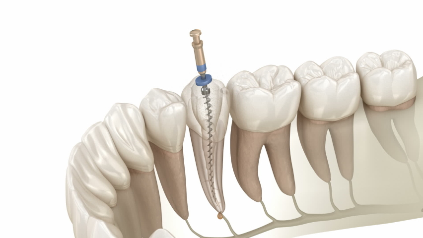Endodontic root canal treatment process. Medically accurate tooth 3D animation | Shutterstock HD Video #1063067899