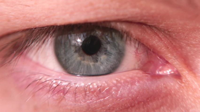 Close-up of a human eye. Red vessels on the white of the eyeball after injury. Blinking, moisturises the mucous membrane. Damaged vessels of the eye.