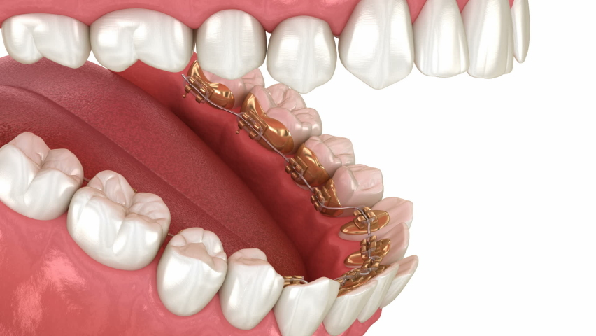 Lingual braces system, bite correction. 3D animation concept of golden braces Royalty-Free Stock Footage #1063753813