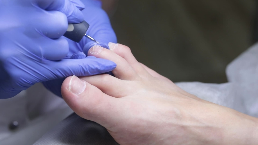 The nail technician cleans the pterygium on the toenails with a small cutter. Hardware pedicure in the salon. | Shutterstock HD Video #1065712036
