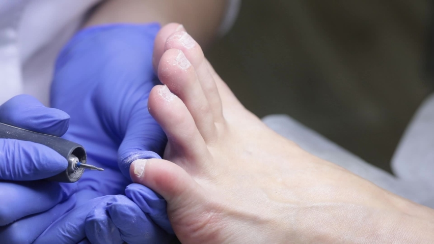 The nail technician cleans the pterygium on the toenails with a small cutter. Hardware pedicure in the salon. | Shutterstock HD Video #1065712042