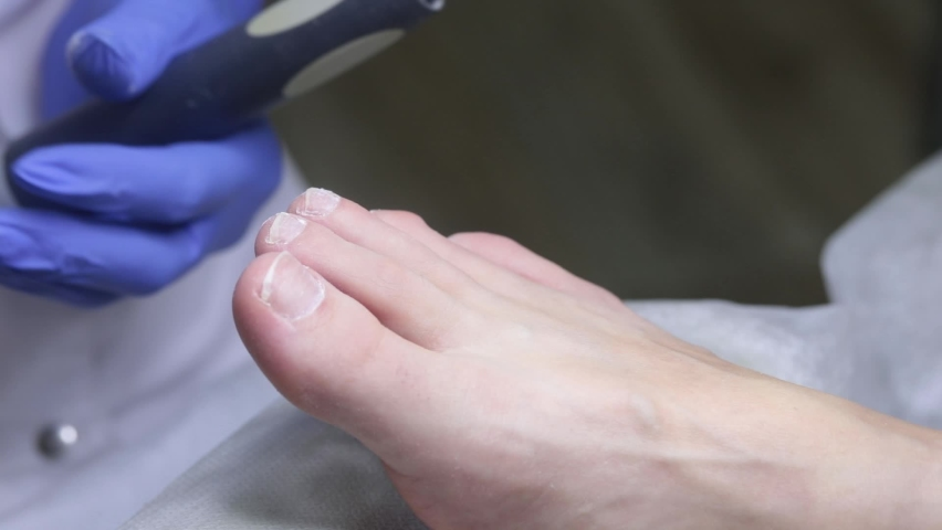 The nail technician cleans up dust from the nails after processing with a cutter. Medical pedicure in the salon. | Shutterstock HD Video #1065712408