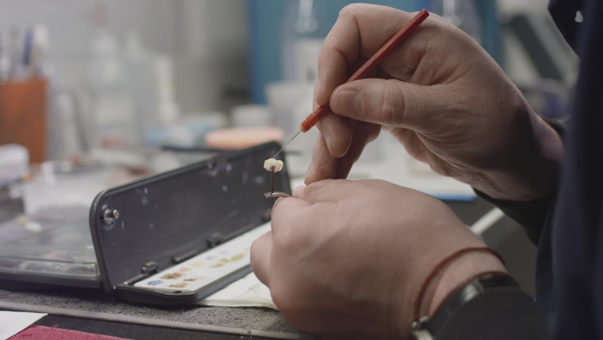 A dentist creates a model of a jaw prosthesis and ceramic teeth in the laboratory. Apply paint to dental implants with a brush. Artificial teeth. Application of new technologies in dentistry. | Shutterstock HD Video #1066268755