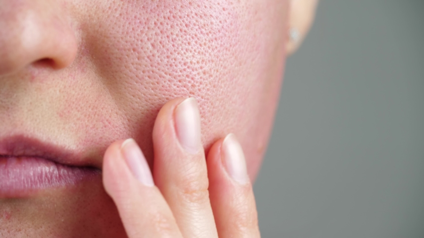 Skin texture with enlarged pores. Part of a woman's face close-up. Irritation, allergies, problem skin.   Shutterstock HD Video #1066791280