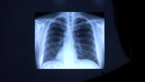 A doctor with a pen checks a medical x-ray of lungs with pneumonia on a big black screen. Doctor points on a radiology chest scan showing lungs affected by pneumonia disease. 4k close-up video.