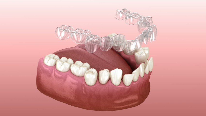 Invisalign braces or invisible retainer make bite correction. Medically accurate 3D animation Royalty-Free Stock Footage #1068345038