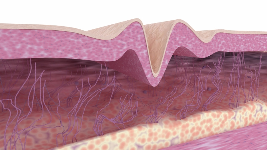 Wrinkle smoothing. Medical 3d animation showing a process of skin rejuvenation, the rebuilding of collagen and elastin fibers, wrinkles removing and skin tightening. The effect of anti-aging treatment Royalty-Free Stock Footage #1069059442