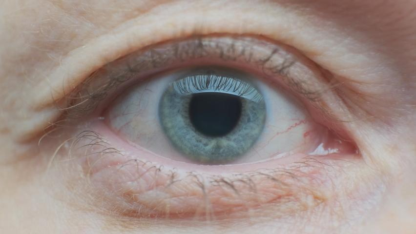 Dilated pupil of human eye narrows close up.