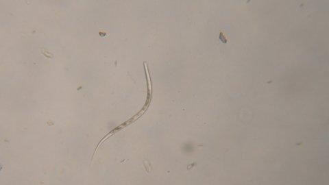 Pinworms tojás fejlődése. Pinworms felnőtteknél - tünetek és kezelés