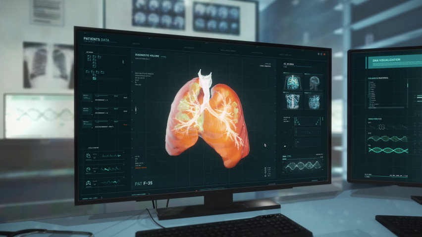 Multiple Monitors in the medical room. Newest Technology is Investigating the Human Lungs for Viruses at the medical room. Finding Covid-19 Traces. Medical Room at the Modern Laboratory. Laboratory. | Shutterstock HD Video #1074530660