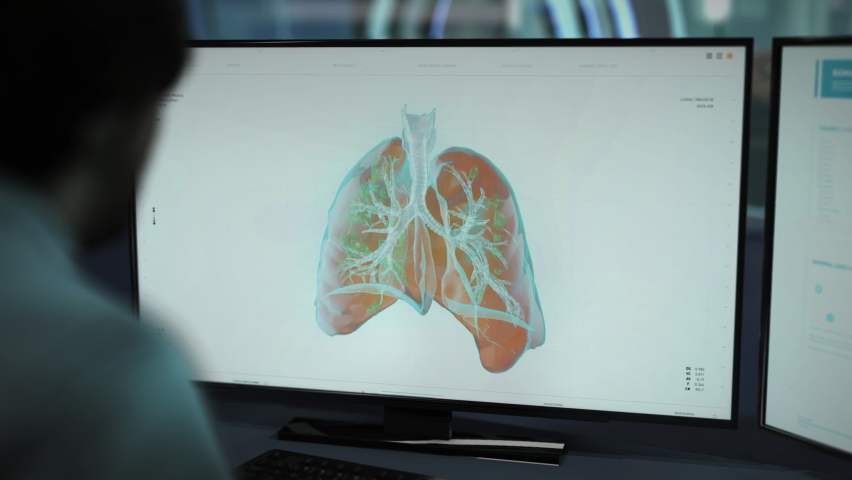 Doctor is Sitting Behind the Desk. Supervising the Process of Examining the Human lungs. DNA of the Lungs is Checked. Molecules of DNA have Been Infected with the Newest Stamm of the Virus. Lungs. DNA | Shutterstock HD Video #1074712454
