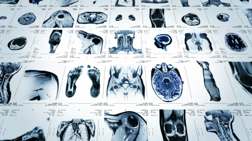 MRI video wall. Black and white. Loopable. Frontal view. 2 videos in 1 file. Composite video showing multiple MRI images including: head, neck, arm, foot, pelvis, etc. More options in my portfolio. #11745212
