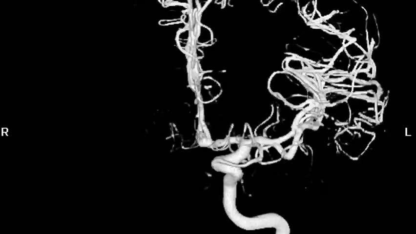 Cerebral Angiogram 3D   Shutterstock HD Video #1343821