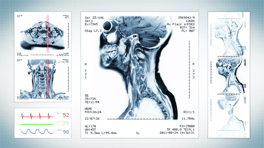 Brain, Knee and Neck MRI Scan. Grey. 3 videos in 1 file. Magnetic Resonance Imaging. Top, front, lateral view and ECG display. Loopable. More color options in my portfolio. | Shutterstock HD Video #13808102