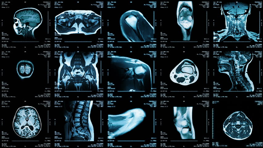 Multiple MRI video wall. Black and white. Loopable. Locked down. 2 videos in 1 file. Composite video showing multiple MRI images including: head, neck, arm, foot, pelvis, etc. #13808429