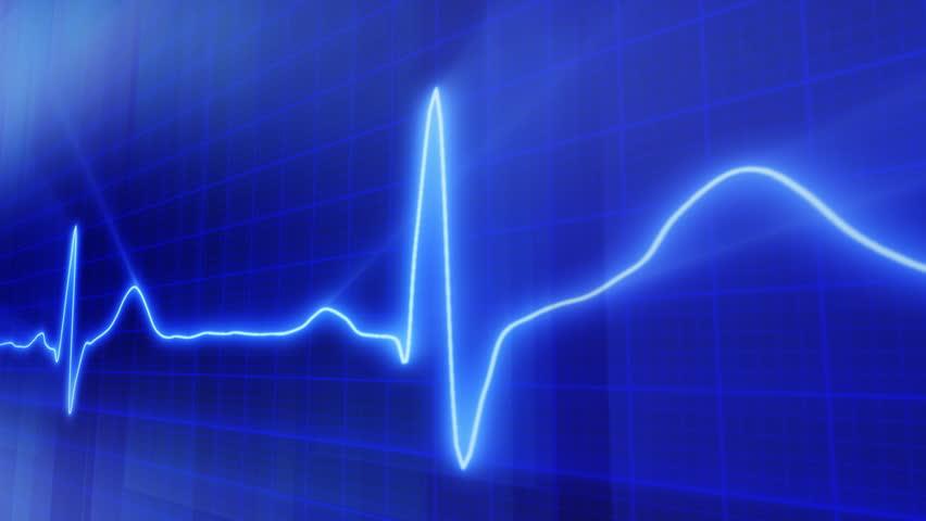 seamless loop blue background EKG electrocardiogram pulse real waveform