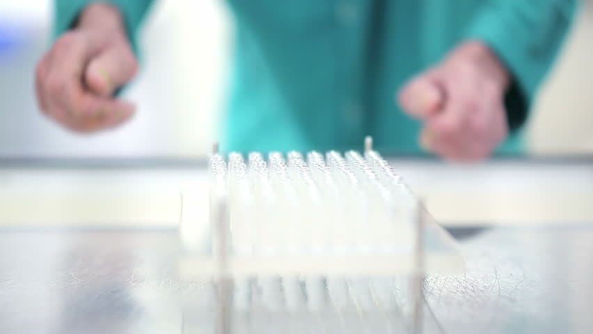 Chemical laboratory. Hands set of glass tubes on a stand. Cleaning tubes after analysis. Work in the hospital. Examination of the patient in the diagnostic center. Research Institute. Blood test. CBC | Shutterstock HD Video #14615293