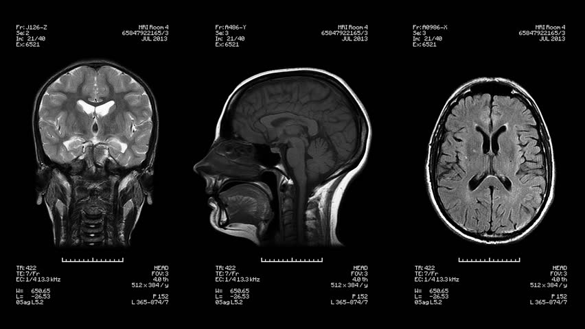 Three head views of MRI scan. Loopable. Black and White. Medical exam. See more color options in my portfolio. #16002136