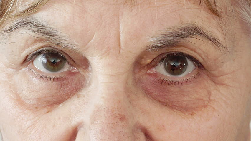 Vision Concerns Associated With Aging
