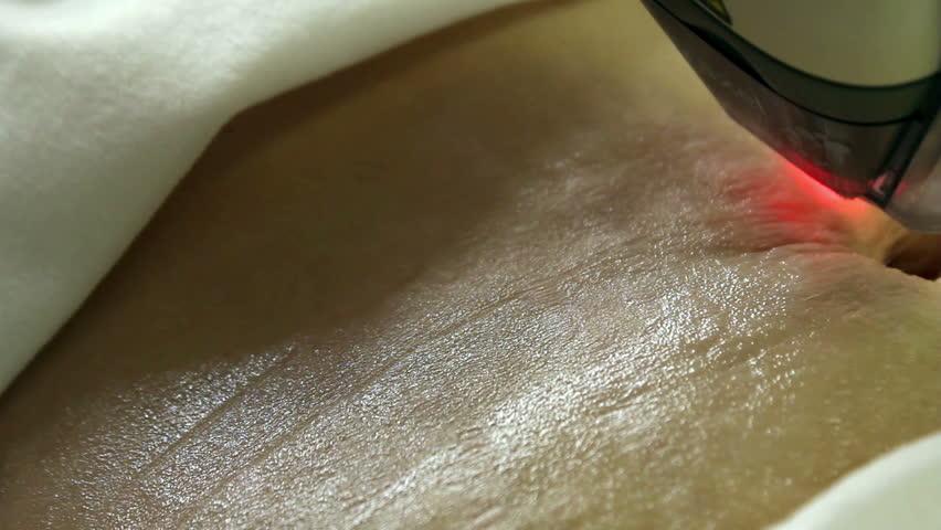 Laser Skin Treatment | Shutterstock HD Video #17719984