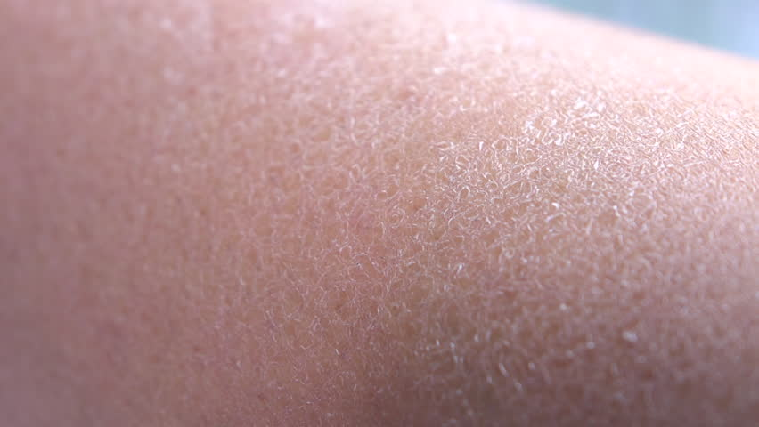 CLOSE UP, DOF, MACRO: Dehydrated, dry, flaky, cracked human skin on young Caucasian woman. Cold, wind and sun caused extreme dryness of outer layer of skin tissue on young woman leg