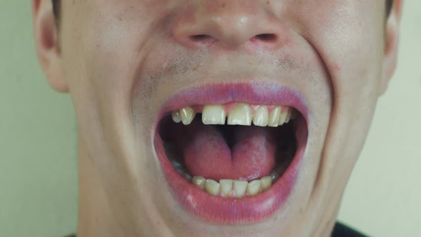 Young man sing song pronounce sounds in front camera. Open mouth. Teeth. Speak. Close up | Shutterstock HD Video #19152124