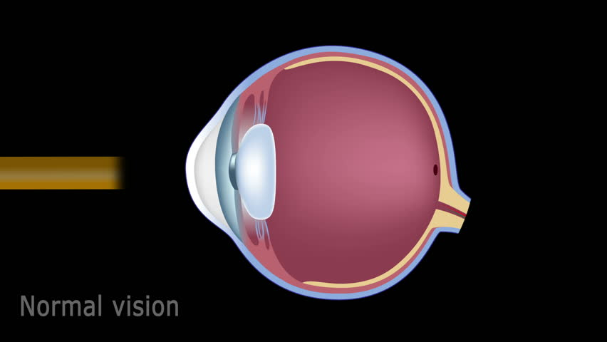 Human eye anatomy and common eye defects