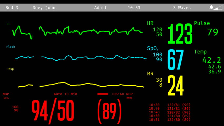 ICU screen monitoring dying patient, vital signs dropping, clinical death. Medical ICU monitor with patient's vital signs Royalty-Free Stock Footage #20286238