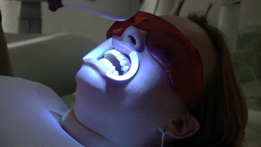 Teeth Whitening Beam Machine Hd Stock Footage Video 100