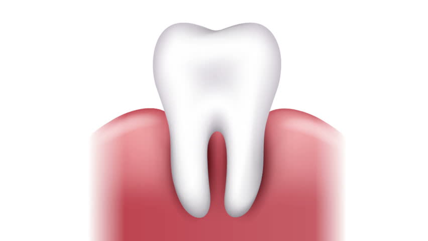 Tooth Caries Formation, Dental Plaque, Stock Footage Video (100%  Royalty-free) 21011866 | Shutterstock